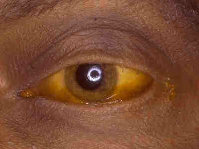 Liver Cancer Yellow Eyes